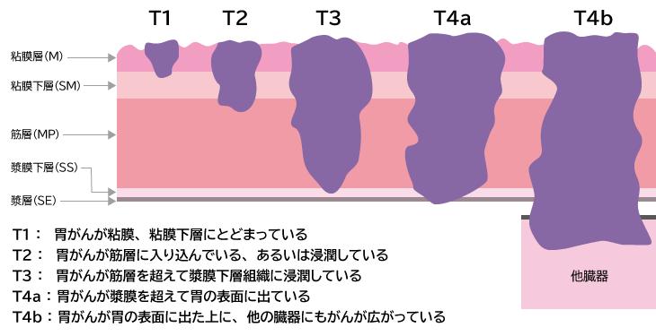 胃癌 ステージ