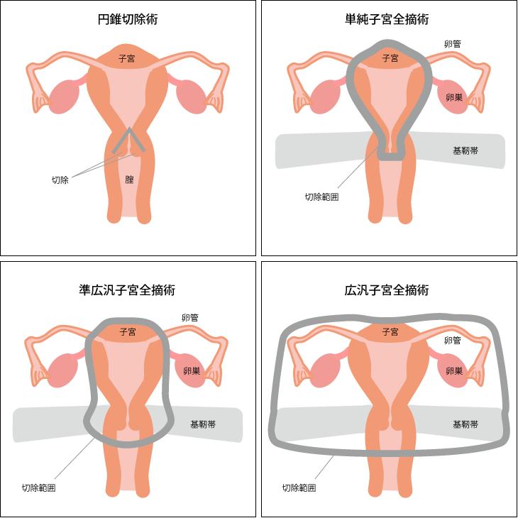 子 宮頸 が ん 手術 入院 期間