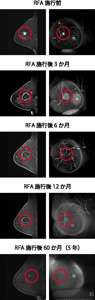 ラジオ波熱焼灼療法後の経過(MRI画像)