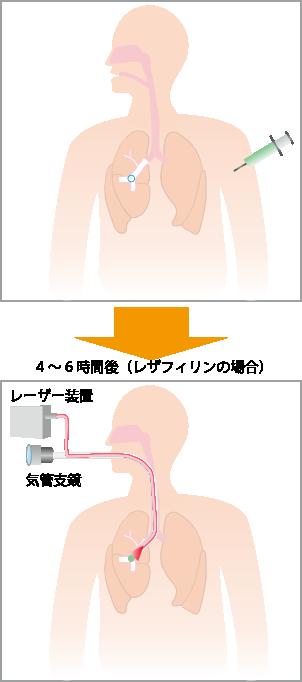 光線力学療法のしくみ(早期肺がん)