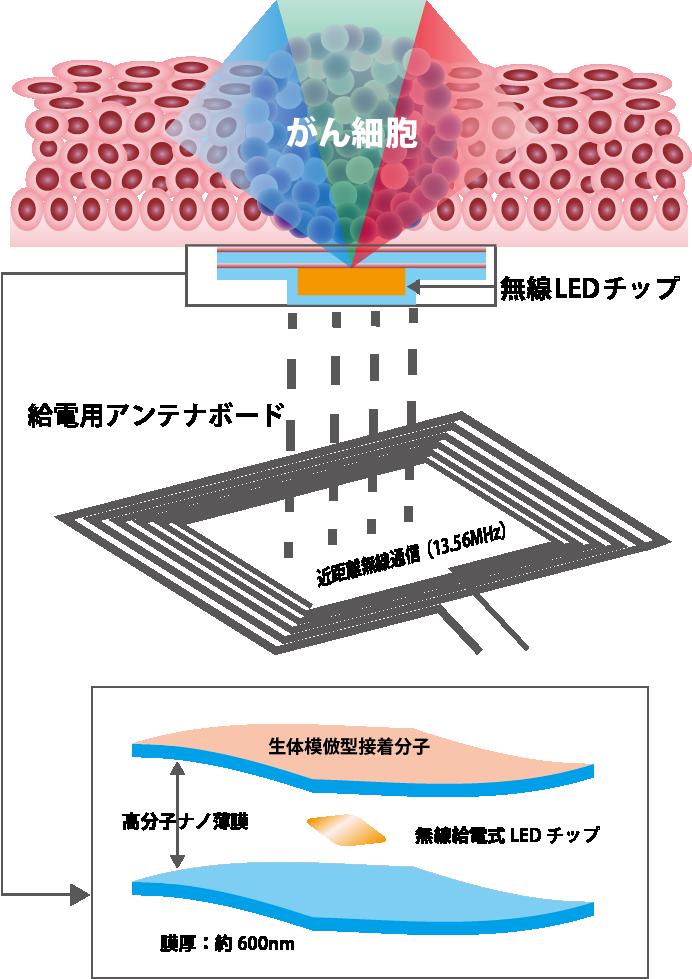 体内埋め込み型発光デバイスのシステム