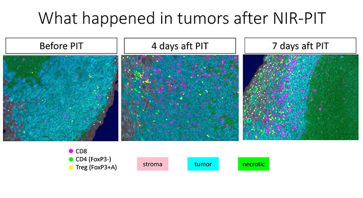 がん細胞の中に免疫細胞が入り込んでいる様子