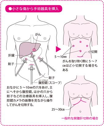 肝臓がんの「腹腔鏡下肝切除」対...