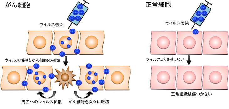 がんウイルス療法